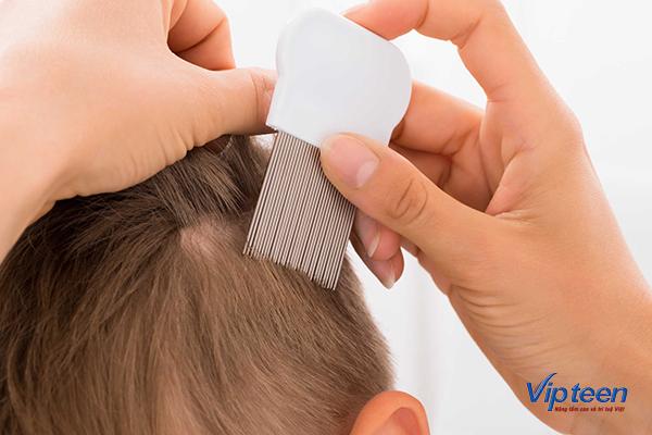 làm gì khi trẻ 4 tuổi bị rụng tóc