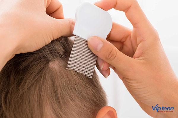 chữa trẻ bị rụng tóc từng mảng