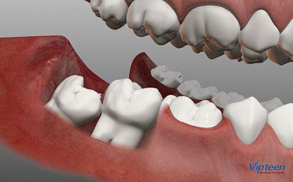nguyên nhân chậm mọc răng vĩnh viễn