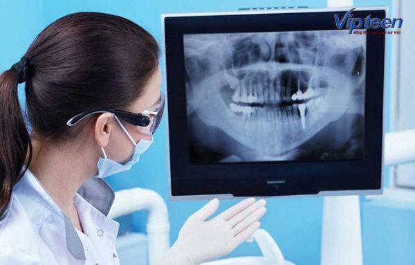 phát hiện còi xương bằng biện pháp chụp x quang