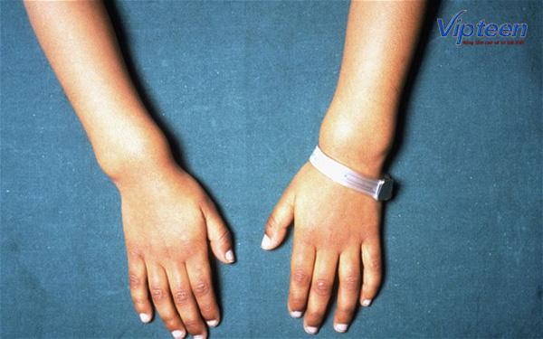 Cổ tay phình to do còi xương