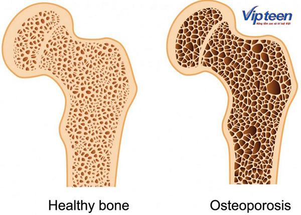 thiếu canxi gây ra tình trạng loãng xương