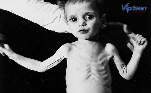 Xương sườn nổi hạt ở trẻ còi xương