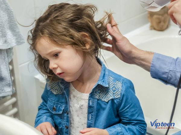 làm gì khi trẻ 3 tuổi bị rụng tóc