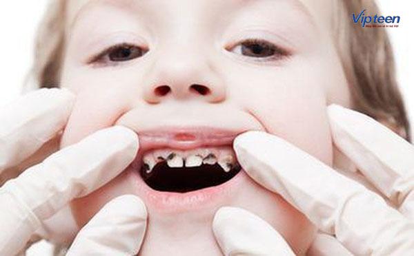 Chậm mọc răng có thể khiến trẻ dễ bị sâu răng