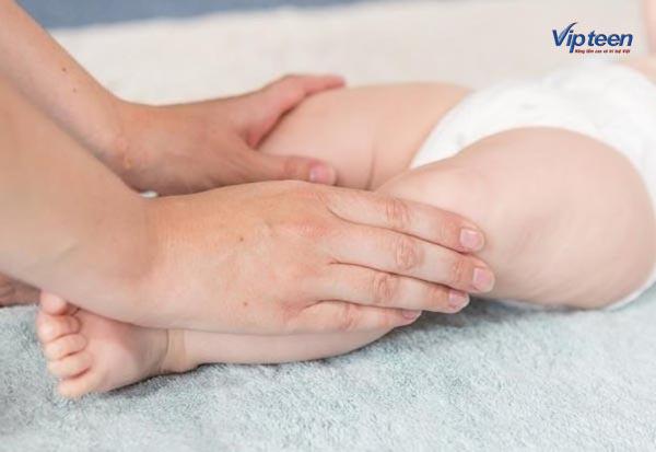 Có nên nắn chân cho trẻ bị vòng kiềng không?