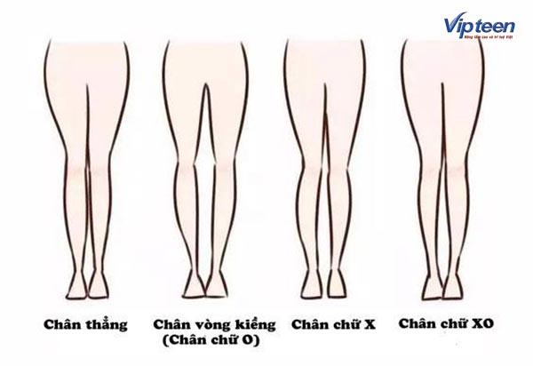 3 kiểu chân vòng kiềng phổ biến nhất