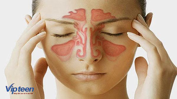 Viêm xoang khiến người bệnh khó chịu