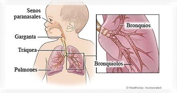 Viêm đường hô hấp trên ở trẻ sơ sinh