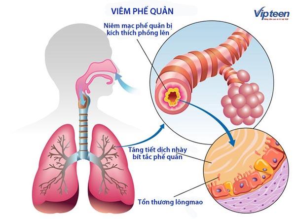 Viêm phế quản là một trong những chứng bệnh viêm đường hô hấp dưới