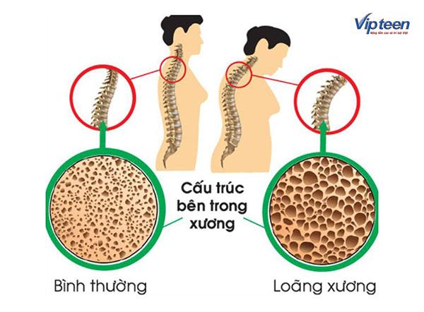 Uống Canxi có tác dụng với xương và răng