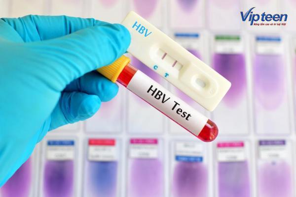 Xét nghiệm lây nhiễm viêm gan B