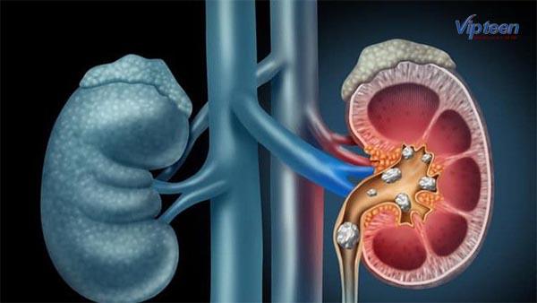 Thiếu canxi gây triệu chứng sỏi thận