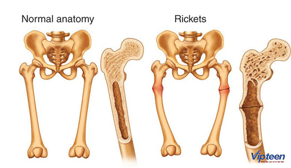 hình ảnh bệnh còi xương